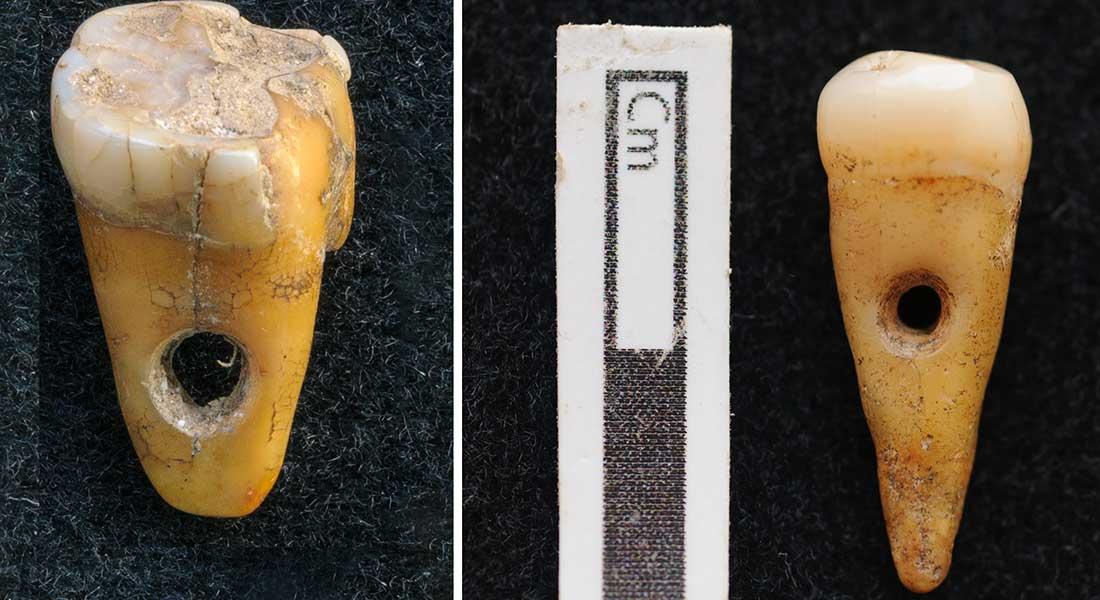 De to 8.500 år gamle gennemborede mennesketænder, som blev fundet i  Çatalhöyük i Tyrkiet. Foto: Københavns Universitet